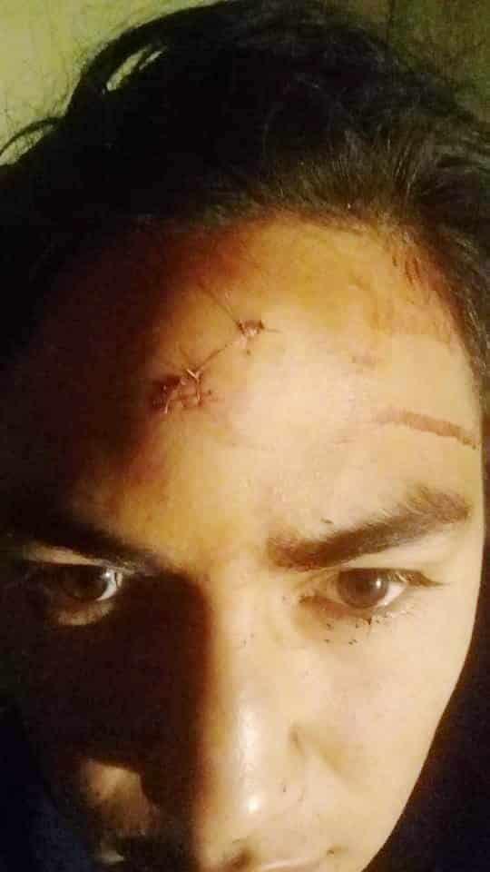 Los ladrones dejaron lesiones visibles en un joven dentro de su domicilio