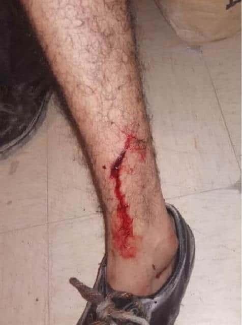 Un sujeto ataco a machetazos a un vecino del municipio de García